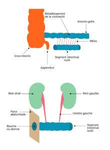 Urétérostomie Bricker
