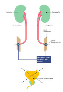 Urétérostomie cutanée directe